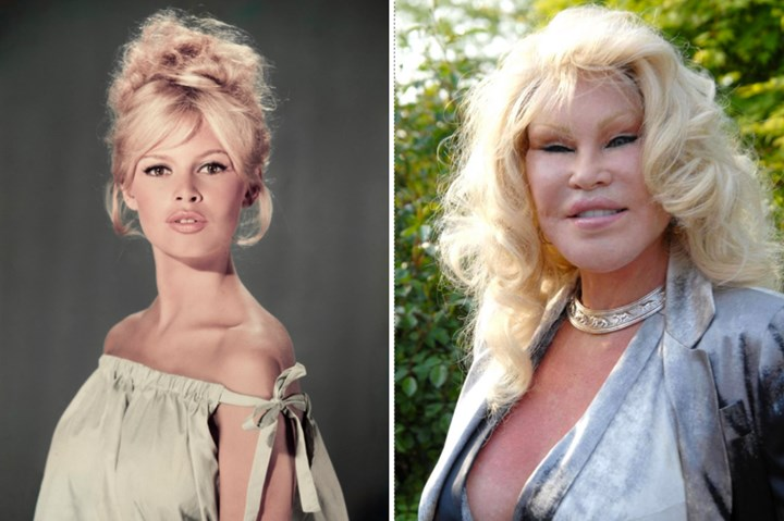 Jocelyn Before And After Botched Cosmetic Surgery