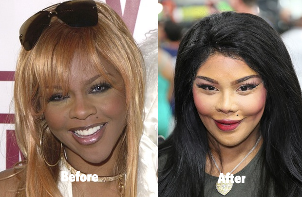 Kimberly Denise Jones Before And After Botched Cosmetic Surgery