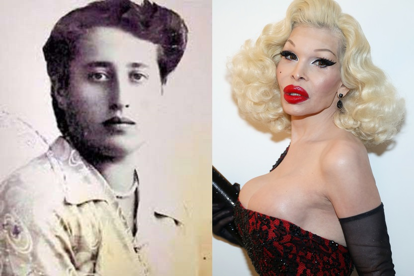 Amanda Lepore Before And After Botched Cosmetic Surgery