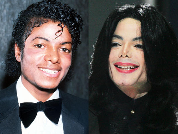 Michael Jackson Before And After Botched Cosmetic Surgery
